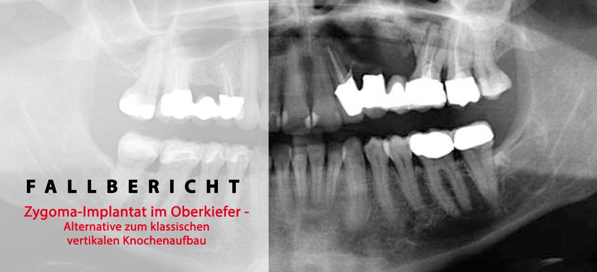 fallbericht-zygoma-implantat