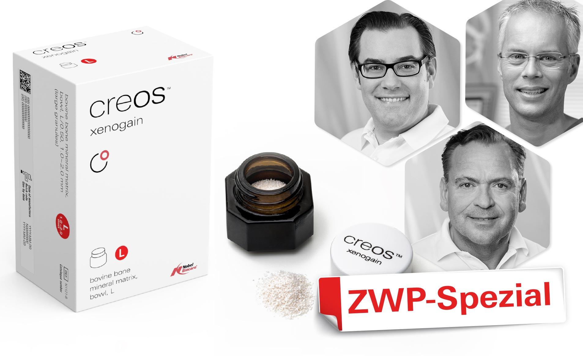 nobelbiocare-creos-xenogain-gbr-zwp-spezial