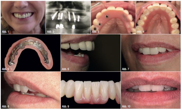 All-on-4: Damals wie heute: Sofortversorgung bei totalem Zahnverlust