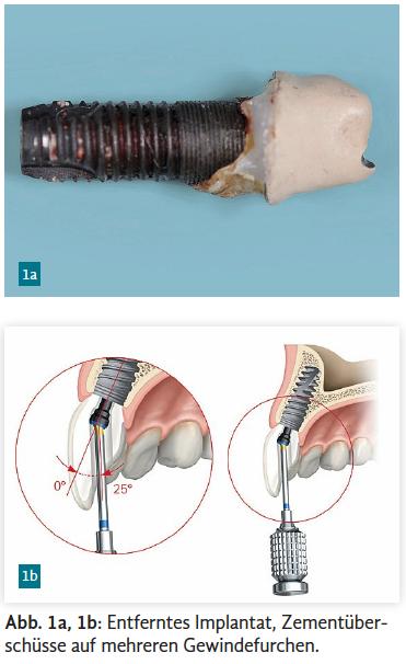 Abb. 1a, 1b: Entferntes Implantat, Zementüberschüsse auf mehreren Gewindefurchen.