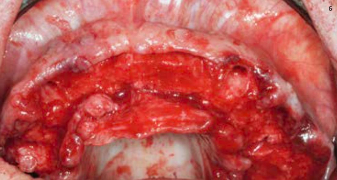 Abb. 06: Es folgte die Extraktion aller Zähne; hier im Oberkiefer