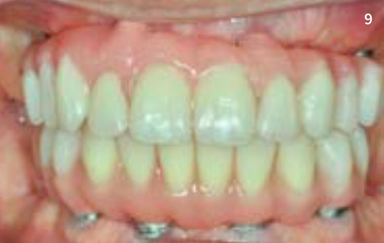 Abb. 09: Sofortversorgung im Ober- und Unterkiefer mit verkürzten Zahnreihen, um Extensionen zu vermeiden