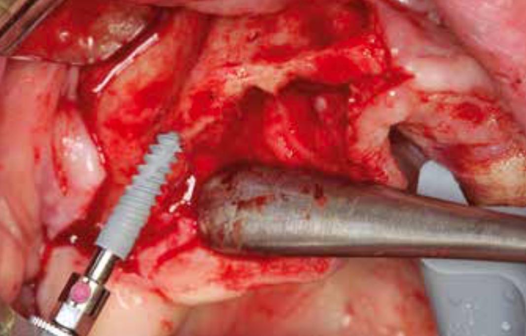 Abb. 3: Einbringen der NobelActive Implantate im Oberkiefer.