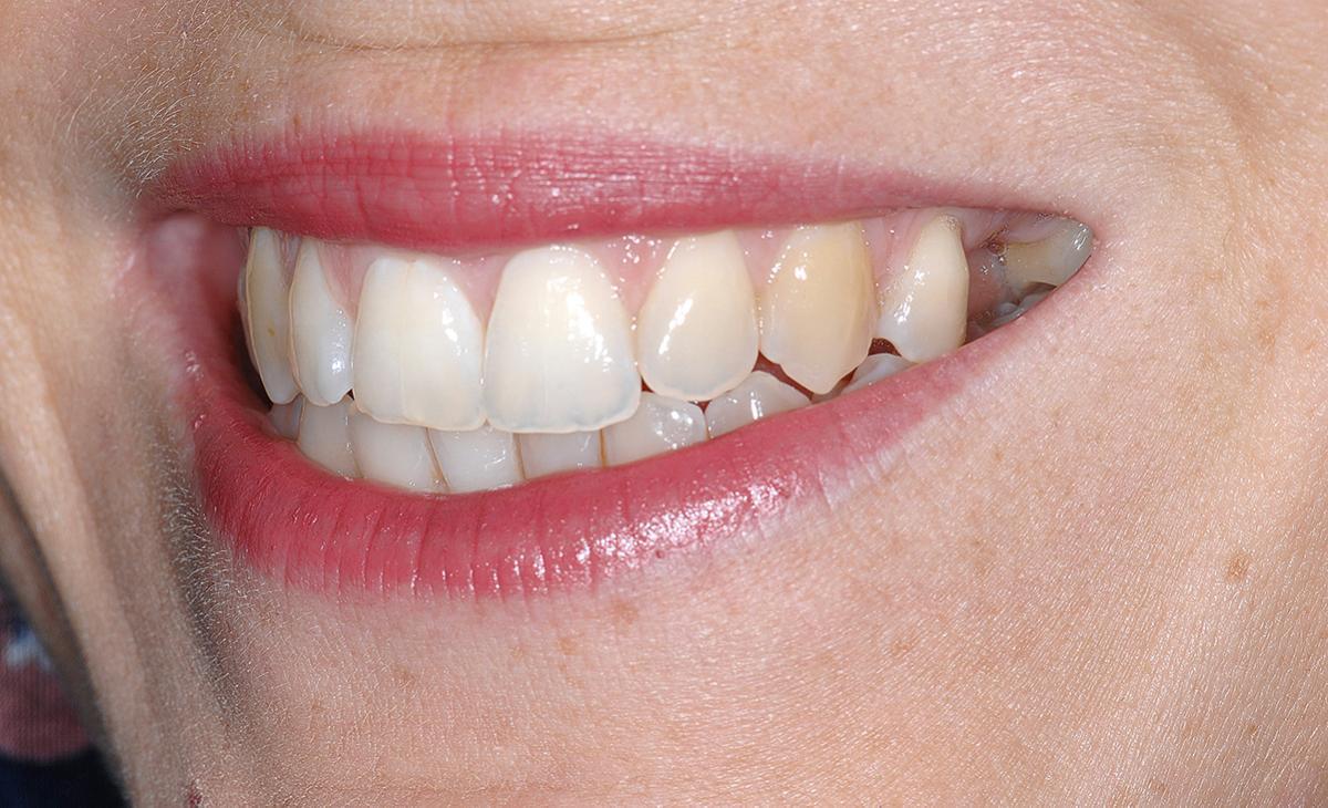 Abb. 1 Die Lippenline beim Lächeln offenbart die Zahnlücke.