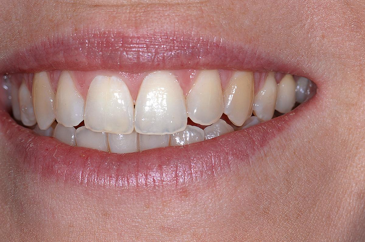 Abb. 22 3 Monate nach dem Eingriff zeigt die Lippenlinie beim Lächeln das natürliche Aussehen und das ästhetische Ergebnis.