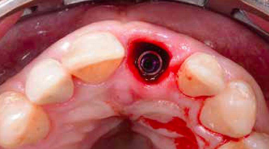 Abb. 4b:  Inseriertes Implantat mit ausreichend Abstand zu den Nachbarzähnen und zur bukkalen Lamelle.