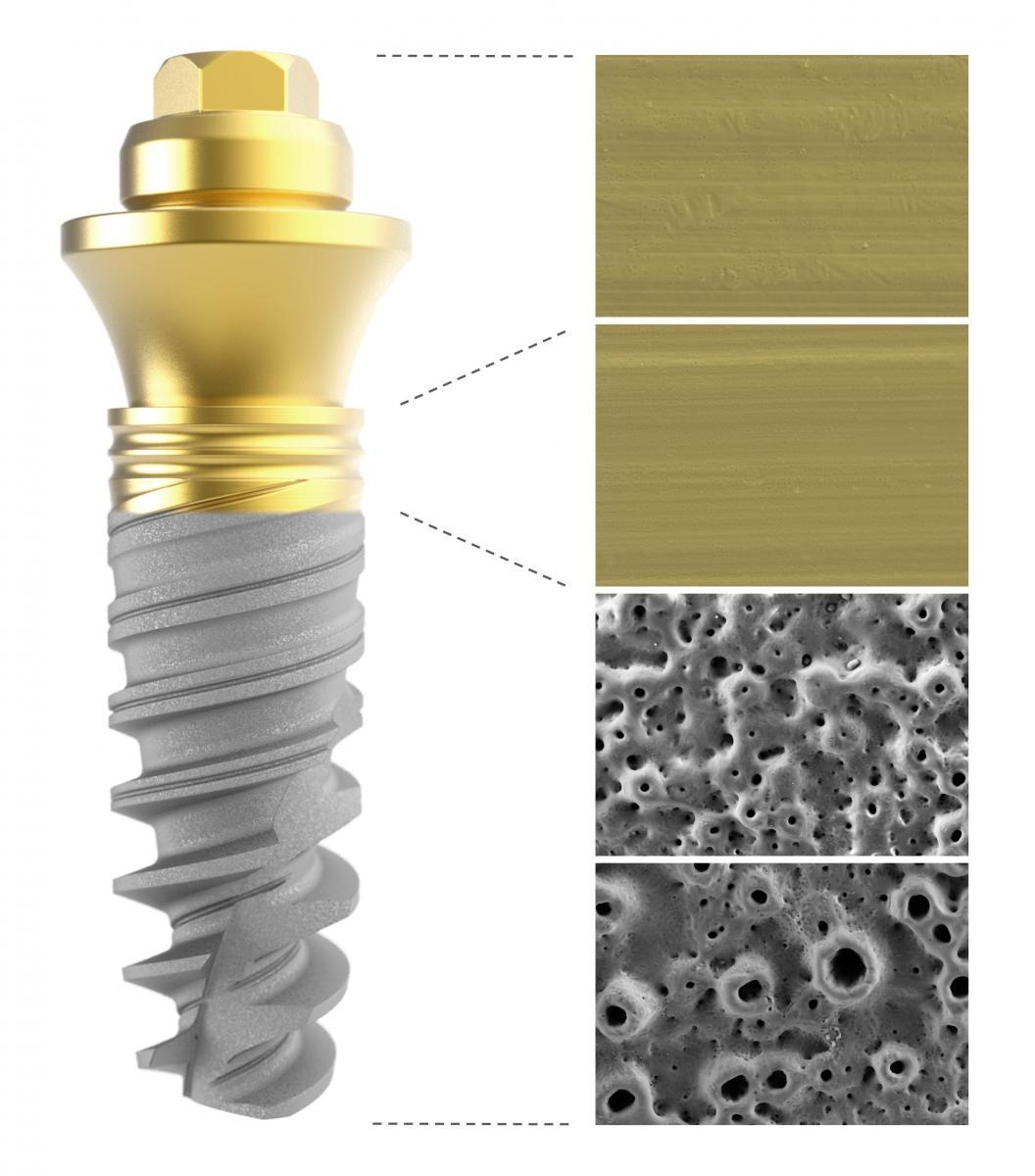 Die umfassende Expertise von Nobel Biocare im Bereich der Anodisierungstechnologie wird auf das gesamte Implantatsystem vom Abutment bis zur Spitze angewendet.