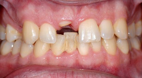 Abb. 1–3: Klinische Ausgangssituation. Teilfrakturen der Zähne 11, 14 und 24 nach Trauma. © Prof. Dr. Michael Gahlert